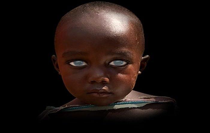 afrika katarakt